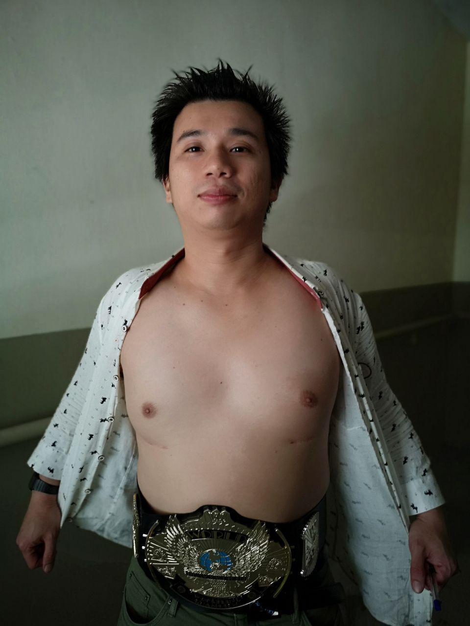 Rice-Media-Kurt-Tay-Father-Shemale-Breast-Implant-2